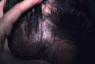 Алопеция или облысение.Наши волосы ведь как магнит притягивают все токсичные вещества, поэтому организм и спешит