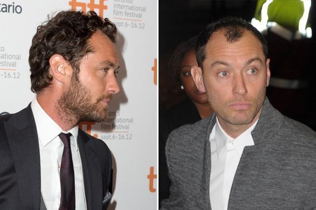 Британский актёр долгие месяцы не отказывал себе в удовольствии похвастать щегольской бородкой, однако позже волосы на его голове резко пошли на убыль – по всей площади головы.