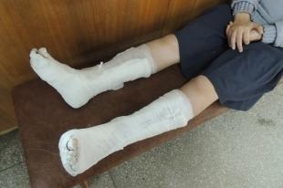 На Южном Урале подозреваемый сломал обе ноги, пытаясь сбежать от полиции