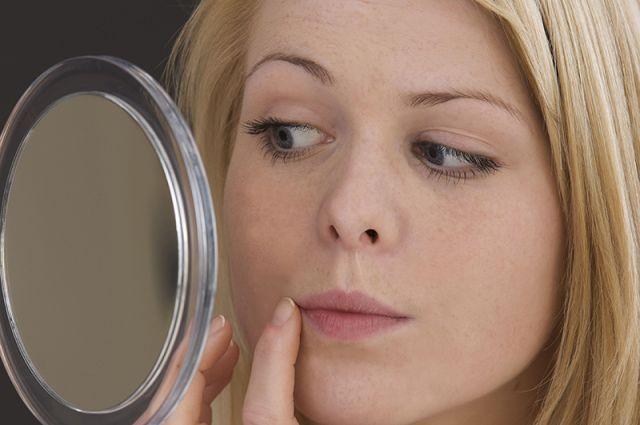 1bcbaaad5bbd Авитаминоз на лице  каких витаминов не хватает вашей коже    Секреты ...