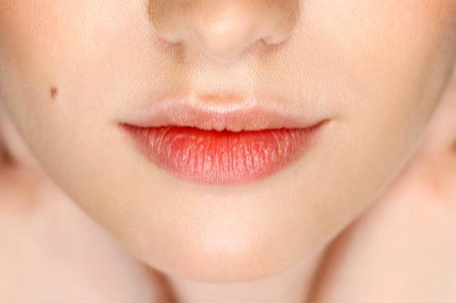 Воспаление слизистой губ
