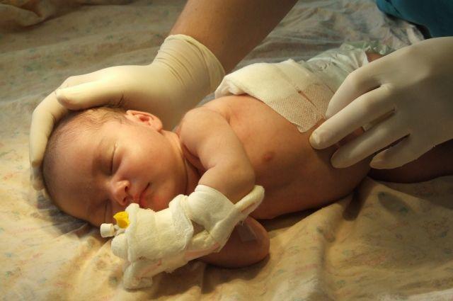 В Областном перинатальном центре прооперировали особую девочку