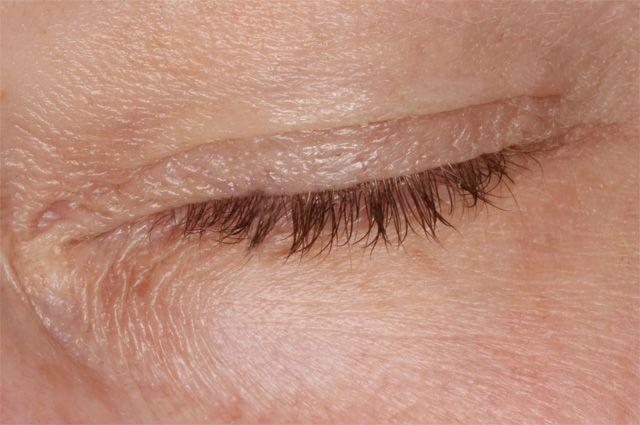 воспаление века глаза ячмень
