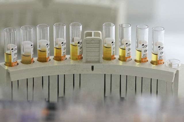 В 90-е годы иркутских химиком приходилось выживать. В наше время проблем в науке все так же много.