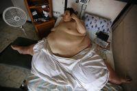 Мануэль Урибе – один из самых тяжёлых людей за всю историю медицины.