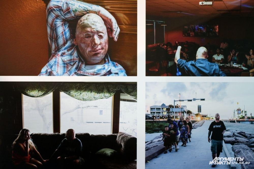 Серия работ Питера Ван Агтмеля (США) заняла второе место в категории «Документальный портрет». 42-летний Бобби Хенлайн остался в живых после того, как «Хамви», в котором он ехал, подорвался на мине во время его четвертой командировки в Ирак.