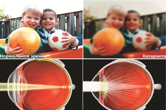 Без лечения катаракты зрение может безвозвратно исчезнуть.