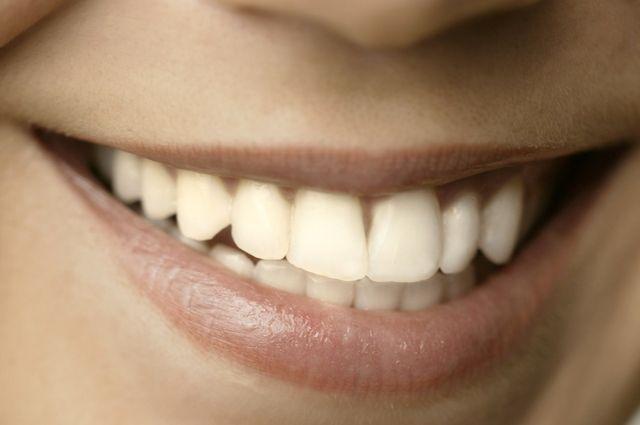 Жительница Златоуста отсудила у стоматологии миллион за испорченную улыбку