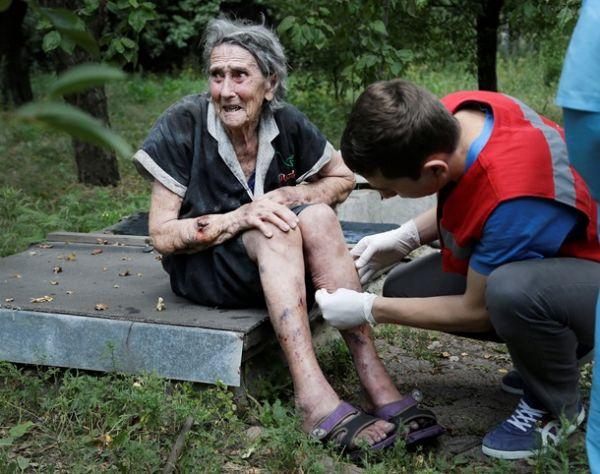 Раненая местная жительница Донецка