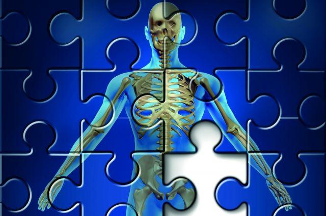 Остеопороз: рекомендации врачей по профилактике и лечению | ПРО ...