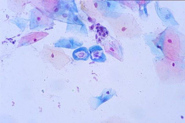 Вирус папилломы человека: чем опасен и как его вовремя выявить ...