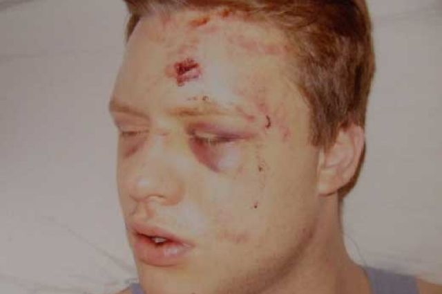 Таким Дмитрий Максимов очнулся в полиции
