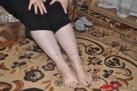 Больные ноги