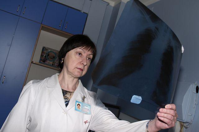рентген-снимок легких
