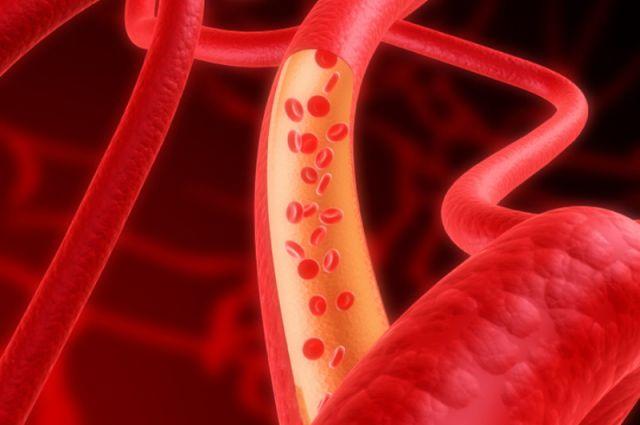 как снизить холестерин женщин