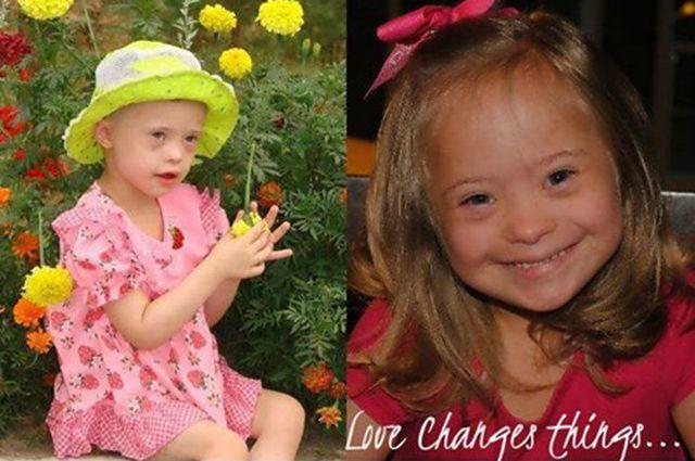 Дети до и после усыновления 67