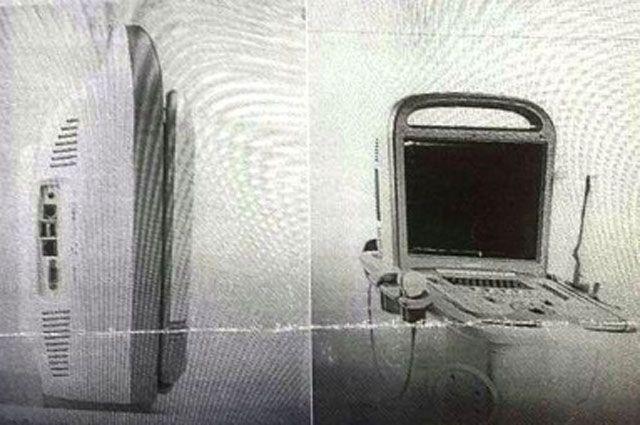 Украденный аппарат УЗИ.