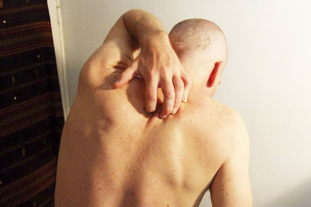 Чесотка -  неприятная и заразная болезнь.