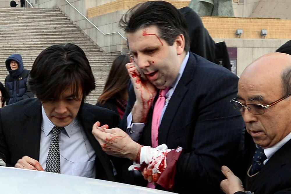 Посол США в Южной Корее Марк Липперт после нападения.