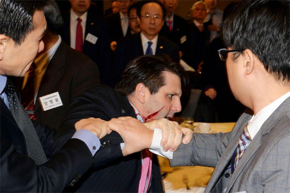 5 марта. Посол США в Южной Корее Марк Липперт после нападения в Сеуле.