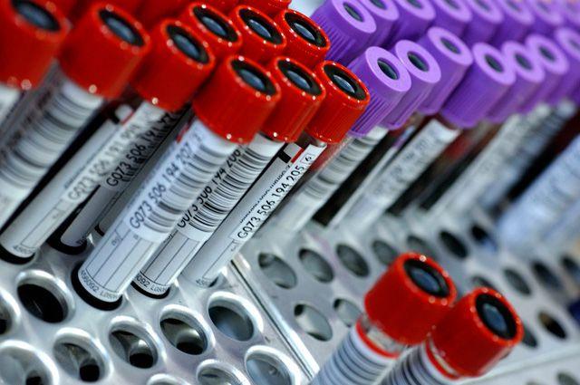 На выставке можно будет сделать анализ крови.