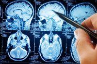 Синдром Туретта - причины, симптомы, диагностика и лечение