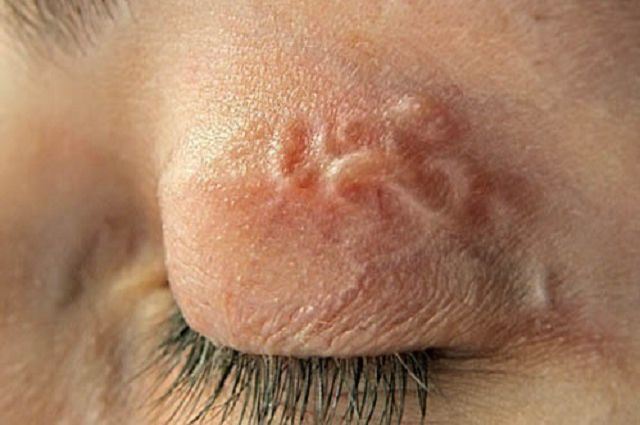 Жителів Херсону укушених комарами вражає захворювання
