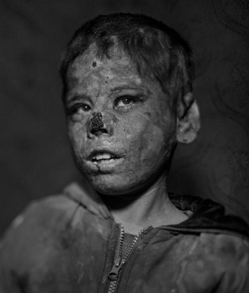 У Али редкая болезнь, из-за которой его кожа получает сильные ожоги под воздействием солнечных лучей. Его родители бежали из Сирии в поисках врачей. Пока же Али вынужден все время проводить в палатке.