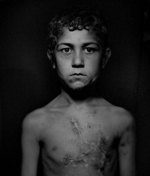 Шиар бежал из Сирии с родными ночью. У самой границы с Турцией семья решила несколько часов отдохнуть. Мальчик проснулся первым. Он недалеко отошел от лагеря и подорвался на фугасе. Он потерял часть левой руки, а грудь, шея и подбородок полны шрамов.