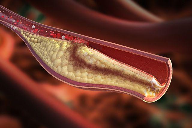 Смерть от тромба как предотвратить