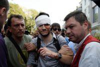 Один из пострадавших во время беспорядков у здания Верховной рады в Киеве.