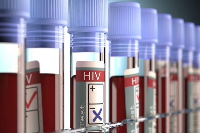 В тех регионах, где бороться с ВИЧ России помогали западные фонды, число инфицированных выросло.