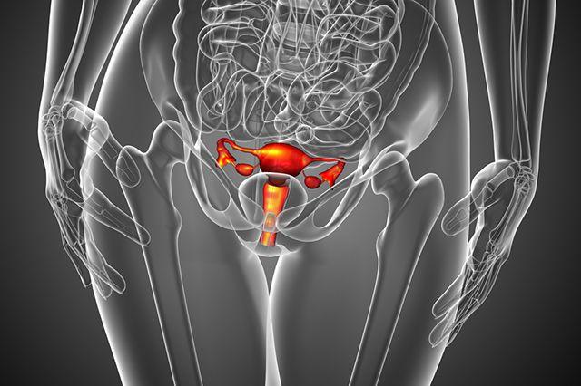 Чем опасна киста яичника у женщин