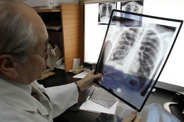 Сколько раз можно делать рентген особенности метода и назначение