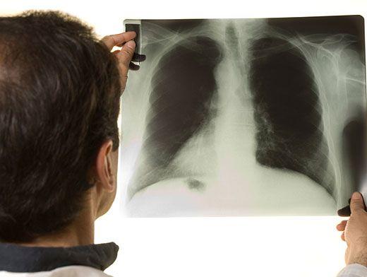 как получить туберкулез