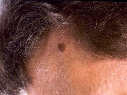 Меланома у детей на голове фото
