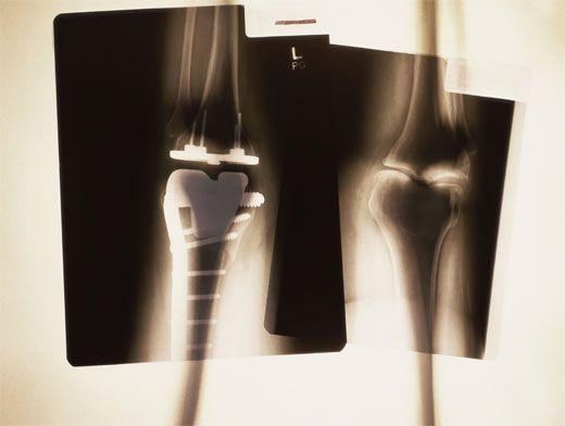 Ревматоидный артрит: симптомы и правила диагностики | Здоровая ...