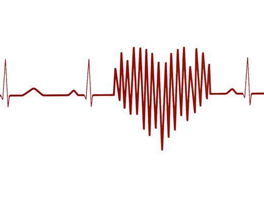 Как увидеть аритмию сердца