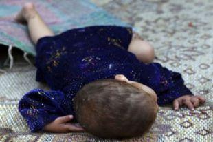Ребенок погиб от отека мозга.