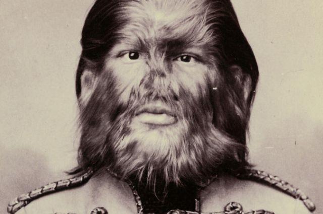 Фёдор страдал редким заболеванием — гипертрихозом.