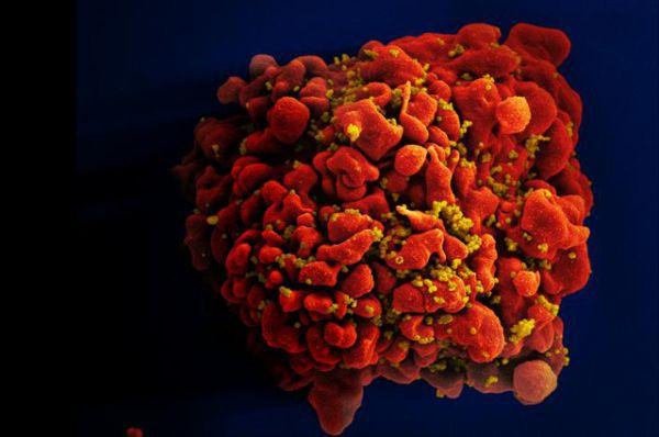 ВИЧ-инфицированная клетка.