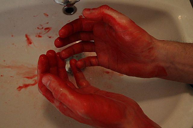 Муж ударил жену ножом.