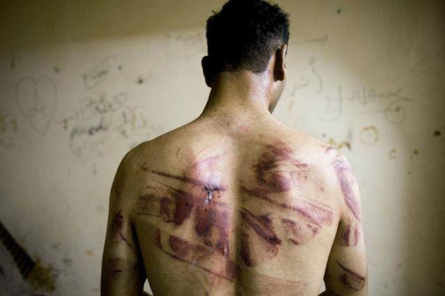 Специалисты ООН попредупреждению пыток могут восстановить визит вгосударство Украину