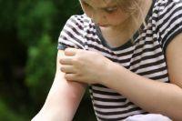 Укус комара - неотъемлемая часть летнего отдыха.
