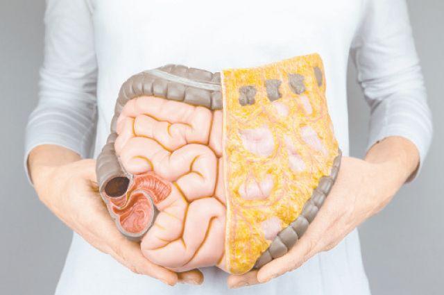 Картинки по запросу Воспалительные заболевания кишечника