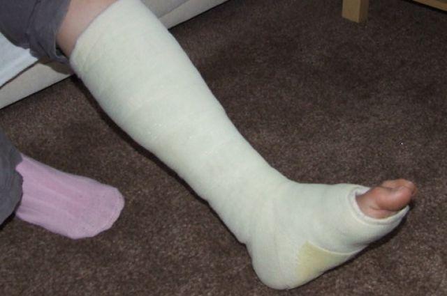 Красноярец сломал ногу, выпав изокна накозырек подъезда