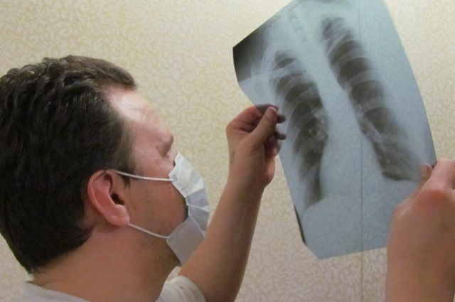 Заболеваемость туберкулезом вАлтайском крае снизилась на6%