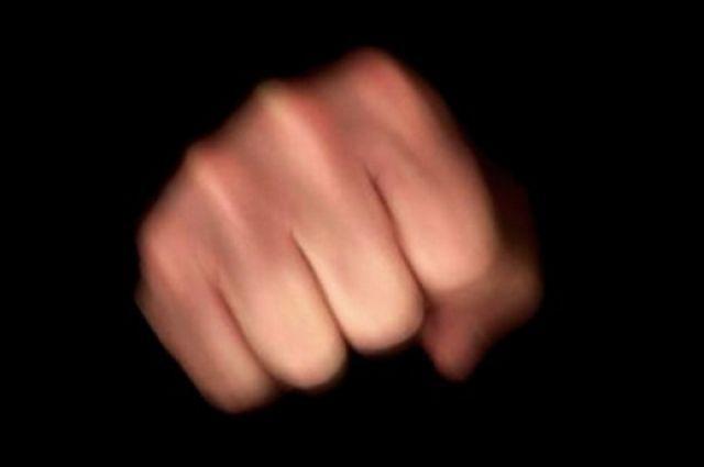 Посетители ресторана вКупчино сломали мужчине челюсть, адругому— навсе 100% разбили лицо