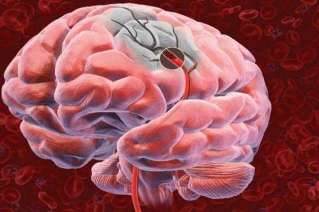 Инсульт  представляет собой острое нарушение мозгового кровообращения.
