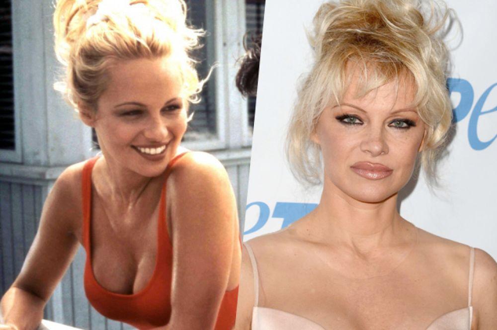 Знаменитая блондинка из сериала «Спасатели Малибу» Памела Андерсон.